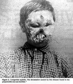 syphilis face rot.jpg